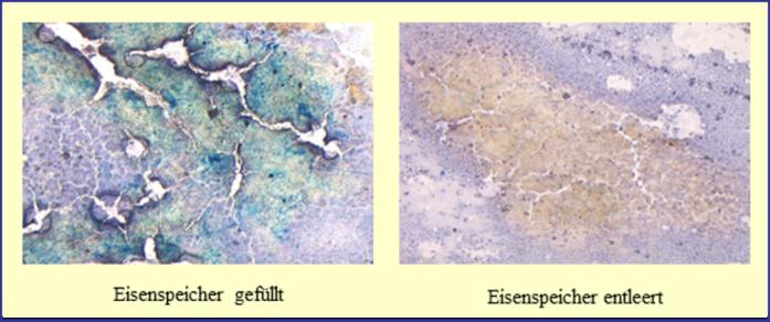 Berliner-Blau-Färbung des Knochenmarks